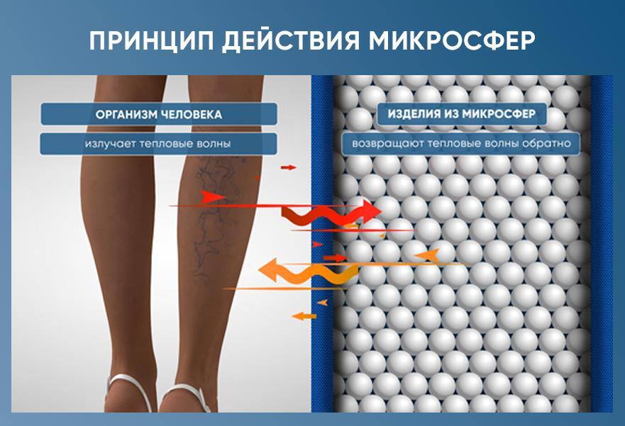 microsfere varicoase)